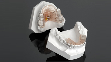 functional-braces